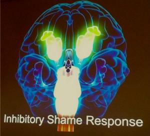 Schaamte response in de hersenen
